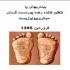 بیماریهای پا